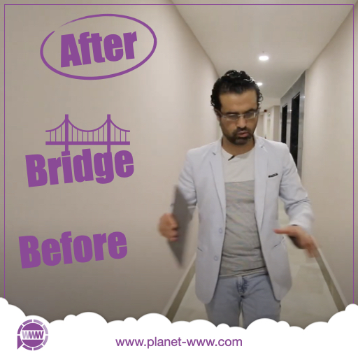 befor after bridge - mehde mohamad