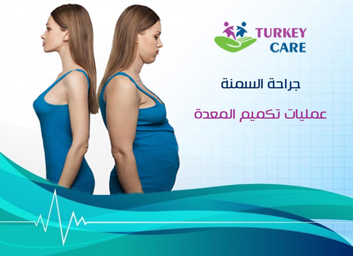 علاج السمنة في تركيا - تكميم المعدة